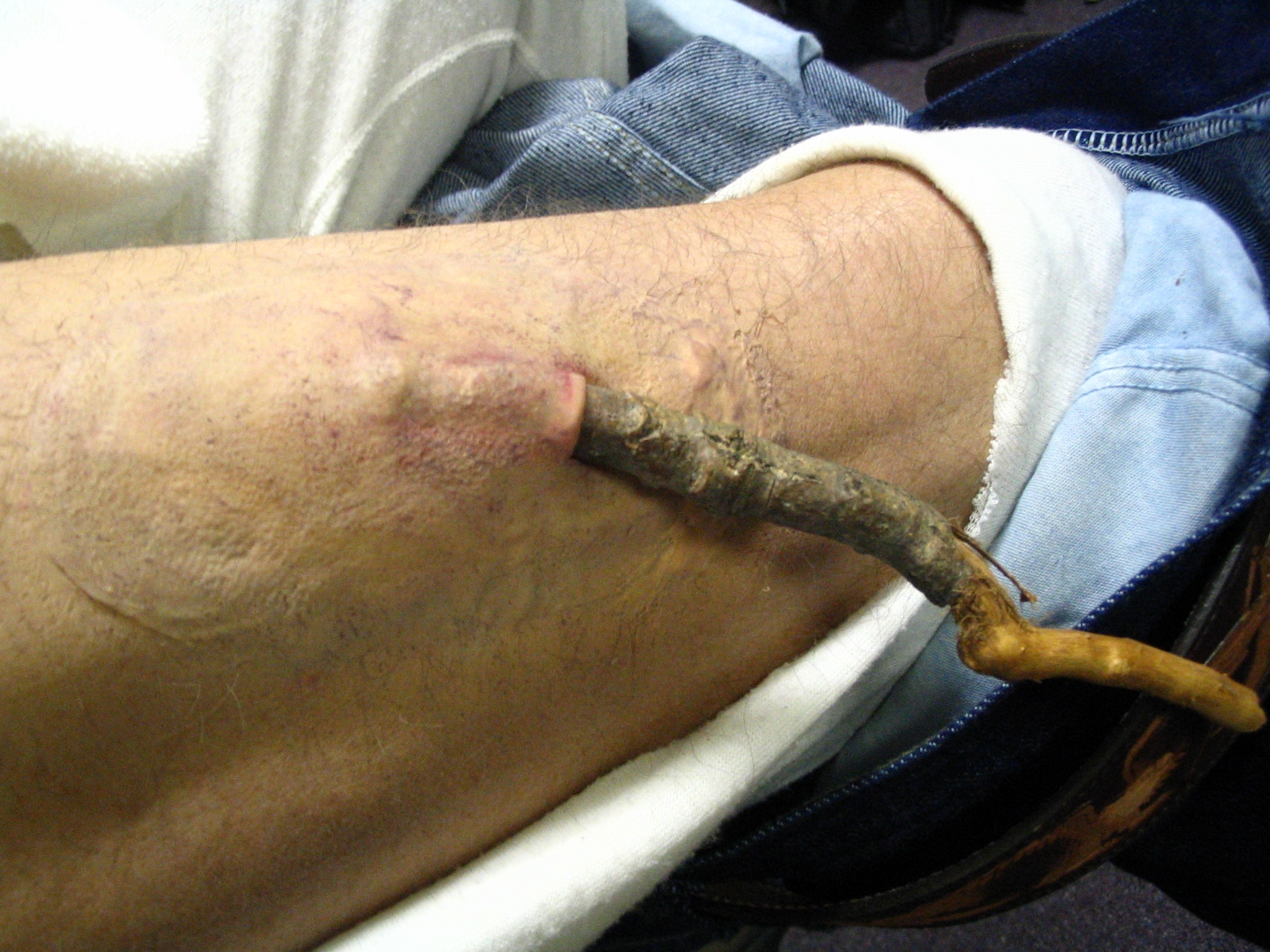 Stick Wound in Leg, Last Stand - Special Effects Makeup by Tim Vittetoe, ImpaQt FX